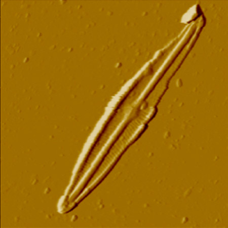 Protozoans in the pond water