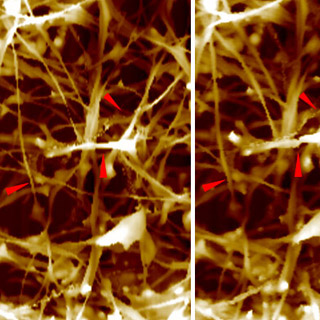Neuron, Suspended Structure