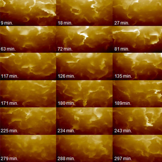 SICM,Hela Cell-Live Membrane Imaging